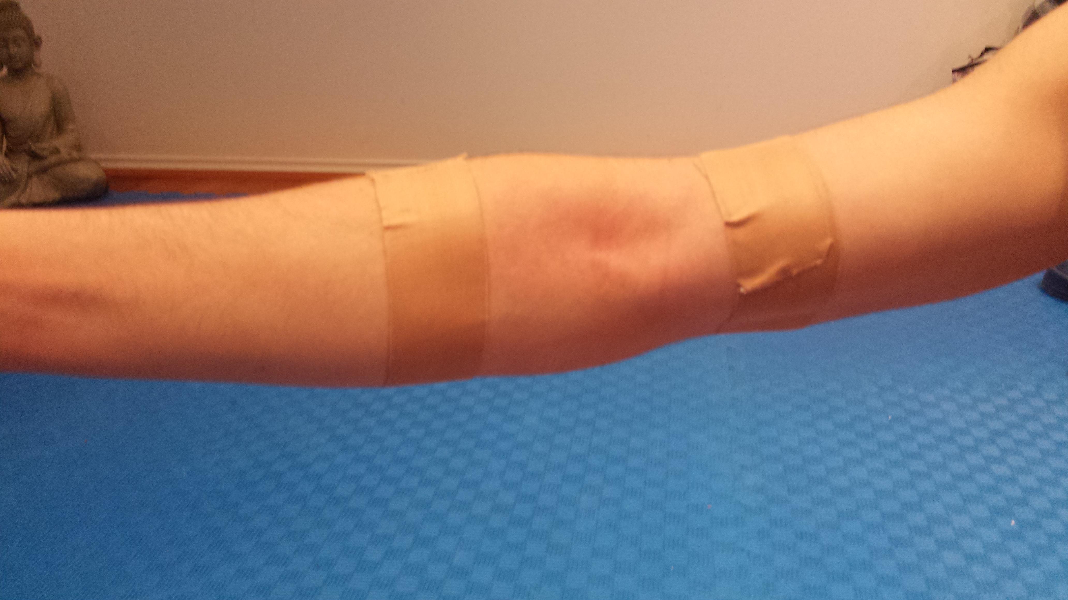 How to Strap an Elbow How to Strap an Elbow new pics